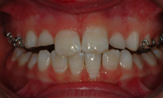 Patient 2 | The Orthodontic Studio After Photo