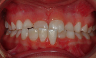 Patient 2 | The Orthodontic Studio Before Photo