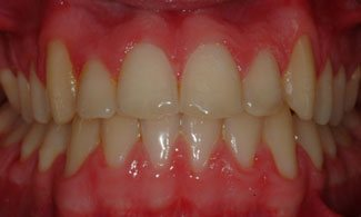 Patient 1 | The Orthodontic Studio After Photo